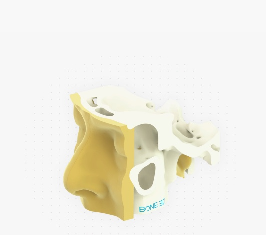 bone3D impression 3D